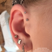 victorias-healed-fwd-helix-pursins-watermarked